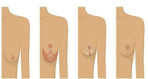 Treo sa trễ vòng 1 là một phương pháp phẫu thuật khắc phục tình trạng ngày một chảy dài của tuyến vú