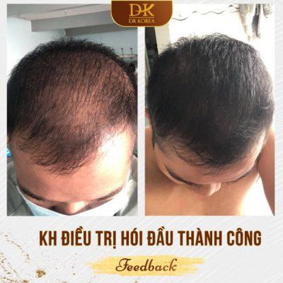 Khắc phục hói đầu thành công nhờ phương pháp cấy tinh chất mọc tóc